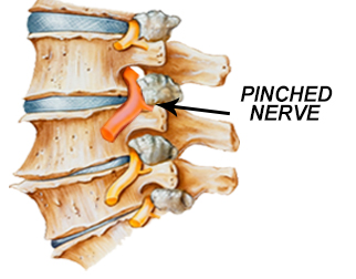 how to know if you have a pinched nerve